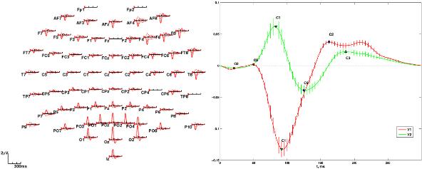 VEP scalp plot with V1 and V2 waveform